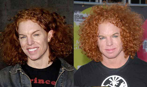 Photo of Carrot Top before and after surgery.